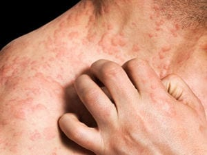 Have Eczema? No Need for Bleach Baths, Study Suggests