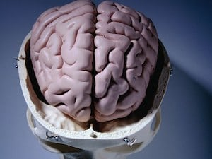Smoking and Diabetes Linked to Calcium Buildup in Brain