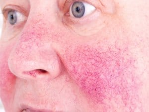 Could You Have Rosacea?